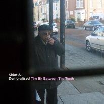 The Bit Between The Teeth